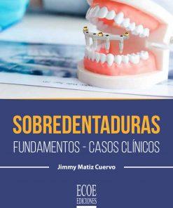 Comprar-libro-sobredentaduras.-Fundamentos-casos-clinicos